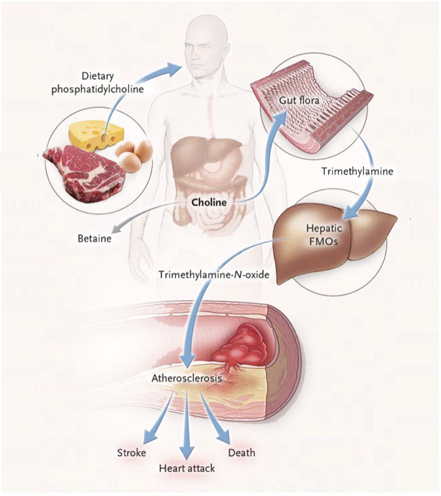 FIGURE 1: Tang et al. 2013. Intestinal Microbial Metabolism of Phosphatidylcholine and Cardiovascular Risk. New England Journal of Medicine.